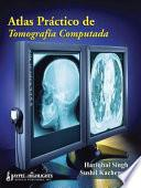 Atlas Práctico De Tomografia Computada