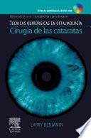 libro Cirugía De Cataratas