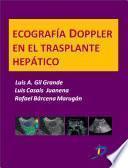 Ecografía Dopple En El Trasplante Hepático